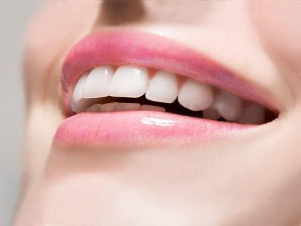 Простое избавление от зубного камня