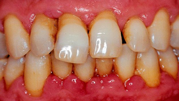 Распространенные заболевания зубов и десен