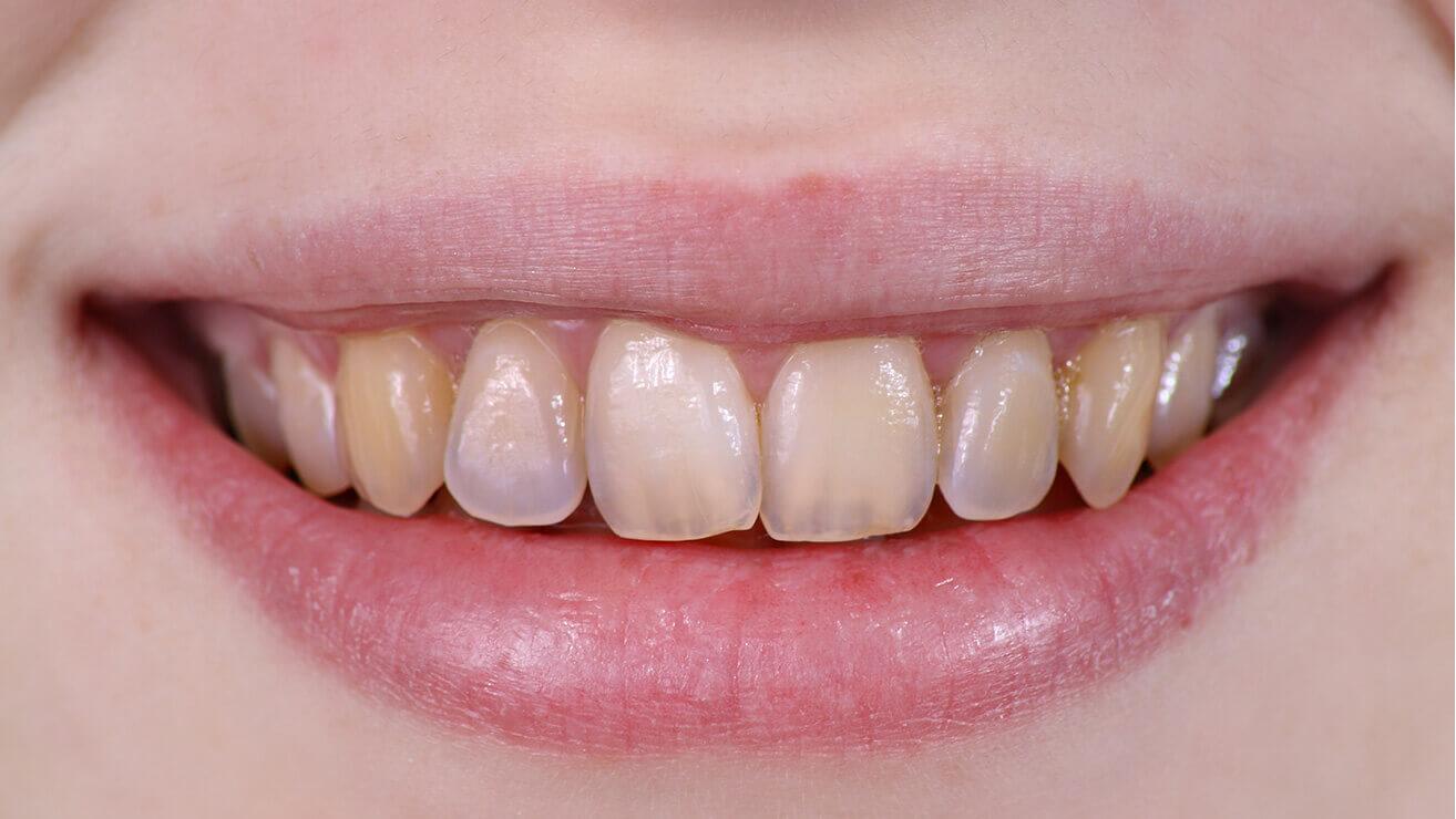 Эрозия зубной эмали: желтоватые зубы