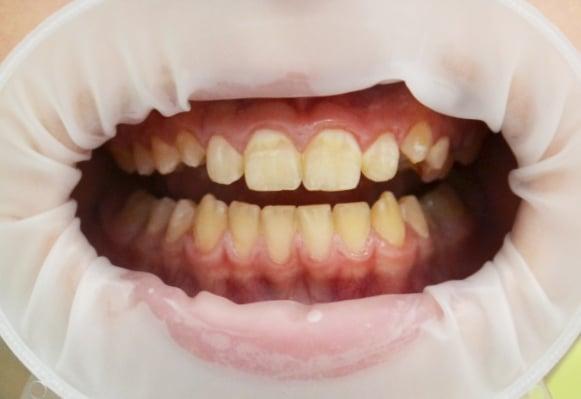 Зубной налет у человека