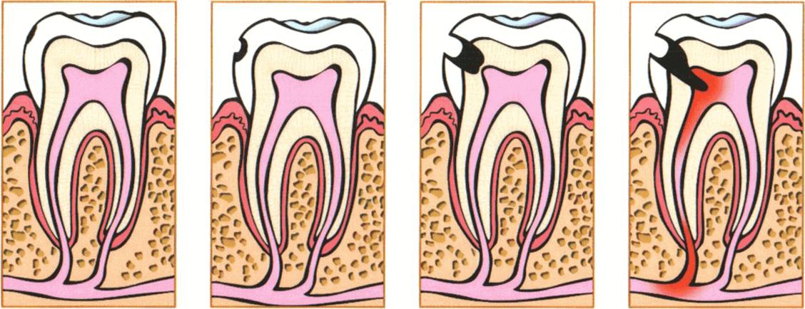 Процесс развития кариеса зубов