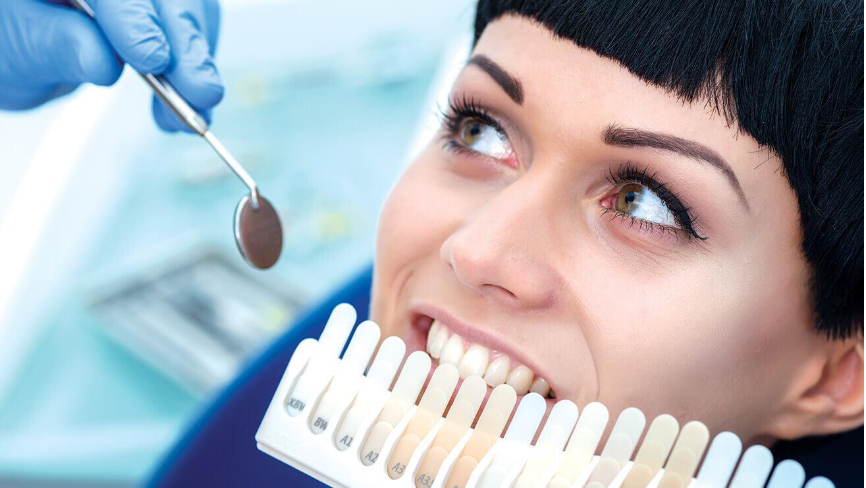 Профессиональное отбеливание зубов у стоматолога