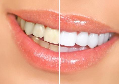 Белизна зубов
