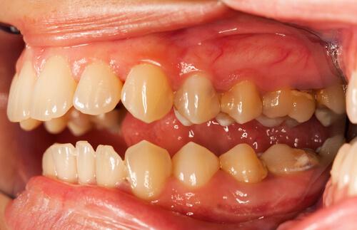 Причины возникновения и борьба с зубным налетом