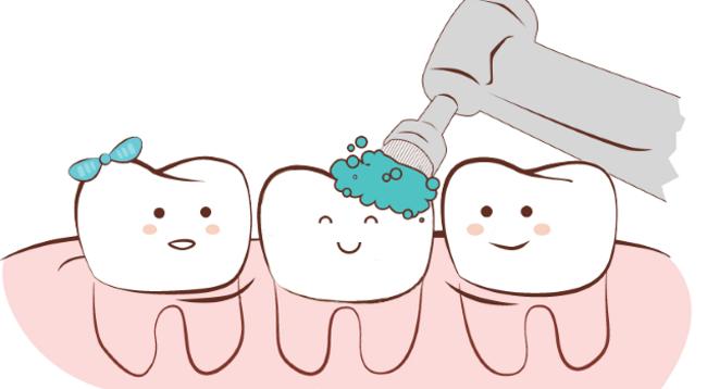 Регулярная профессиональная чистка зубов