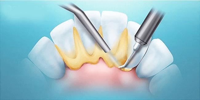 Удаление зубного налета поможет справиься с кровоточивостью десен